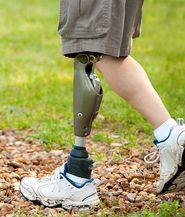 Hochwertige und optimal angepasste Prothesen- und Orthesensystemen